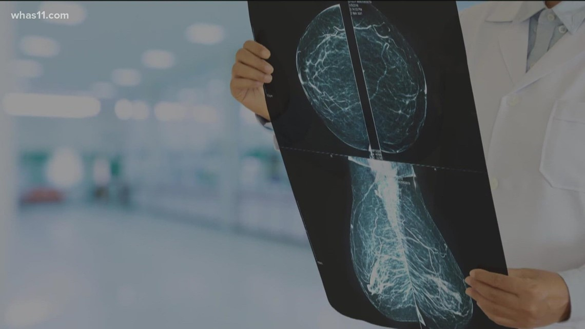 How mammograms, breast cancer screenings can save lives