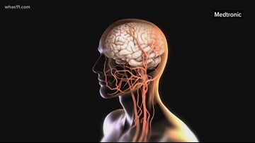 INTERVIEW: Stroke Awareness Month