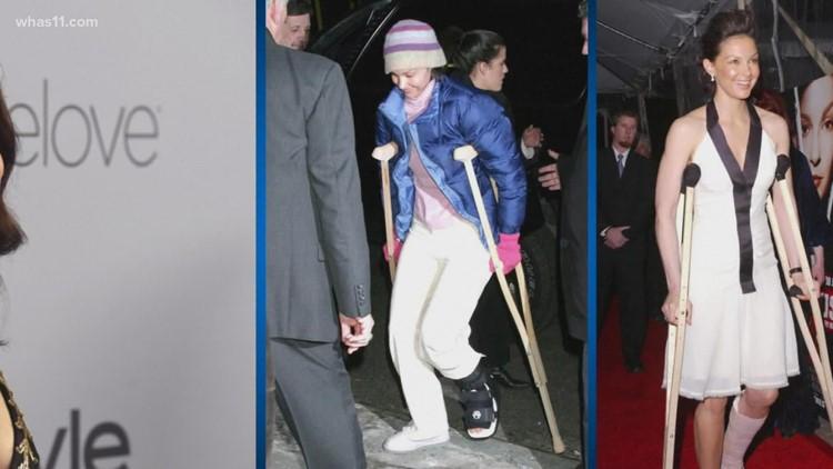 Kentucky native, actress Ashley Judd walks again long after shattering leg in Africa