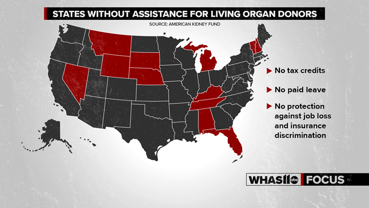 States without assistance for living organ donors